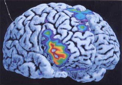 cerveau-index.jpg