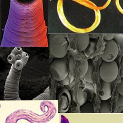 Gélules Parasites