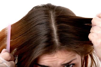 pellicules-cheveux.jpg